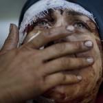 Bombardeo en Idib, Siria, por parte del ejército nacional provoca el llanto de Aida: por las heridas de ella, de su esposo y de sus dos hijos, por la destrucción de su casa, por el sufrimiento que toda guerra trae consigo. Rodrigo Abd, Argentina, The Associated Press, 10 de marzo | 1er lugar en General News Single